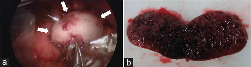Figure 4: (a) The twisted accessory spleen is laparoscopically dipicted as a well-defined mass (arrows) (b) The resected specimen shows a hemorrhagic infarction