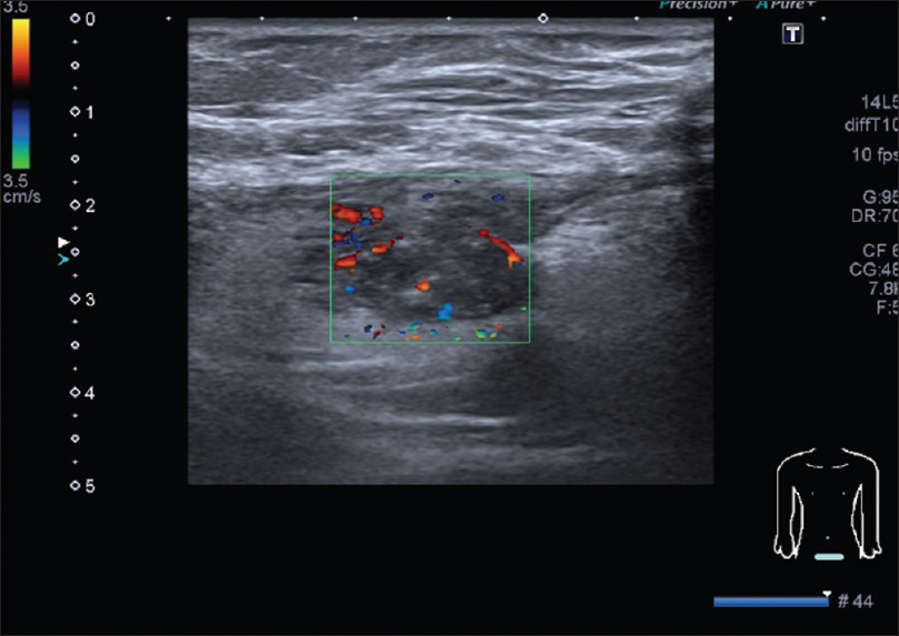 Figure 3: Abdominal soft tissue ultrasound in the axial plane with color Doppler revealing vascularized abdominal wall nodule