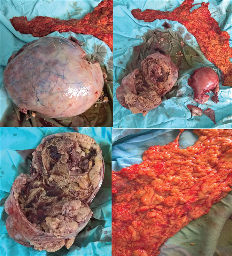 Figure 3: hysterectomy specimen showing solid ovarian mass with yellow contents and with omental specimen with nodular appearance of panniculitis