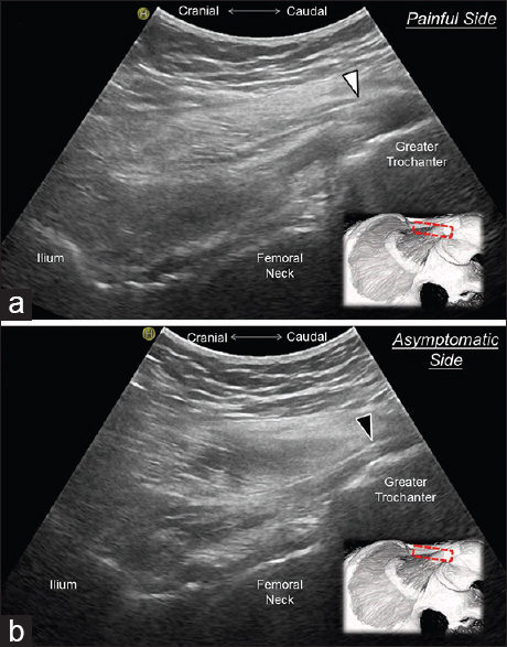 Figure 2: In the long-axis view (a), the gluteus minimus tendon (white arrow head) at the affected side appears more swollen than that of the contralateral side (black arrow head) (b)